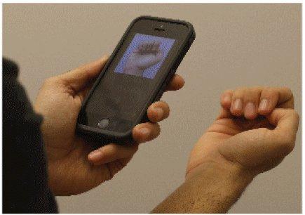 Keine Blutungen erforderlich: – Anämie-Erkennung per smartphone