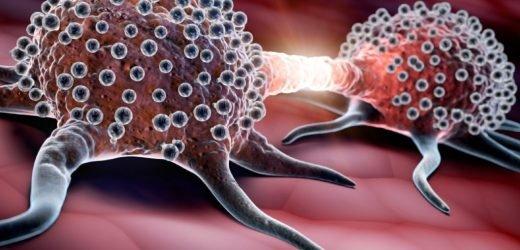 Krebsforschung: Neuentwickelter Wirkstoff verhindert Metastasen-Bildung erfolgreich